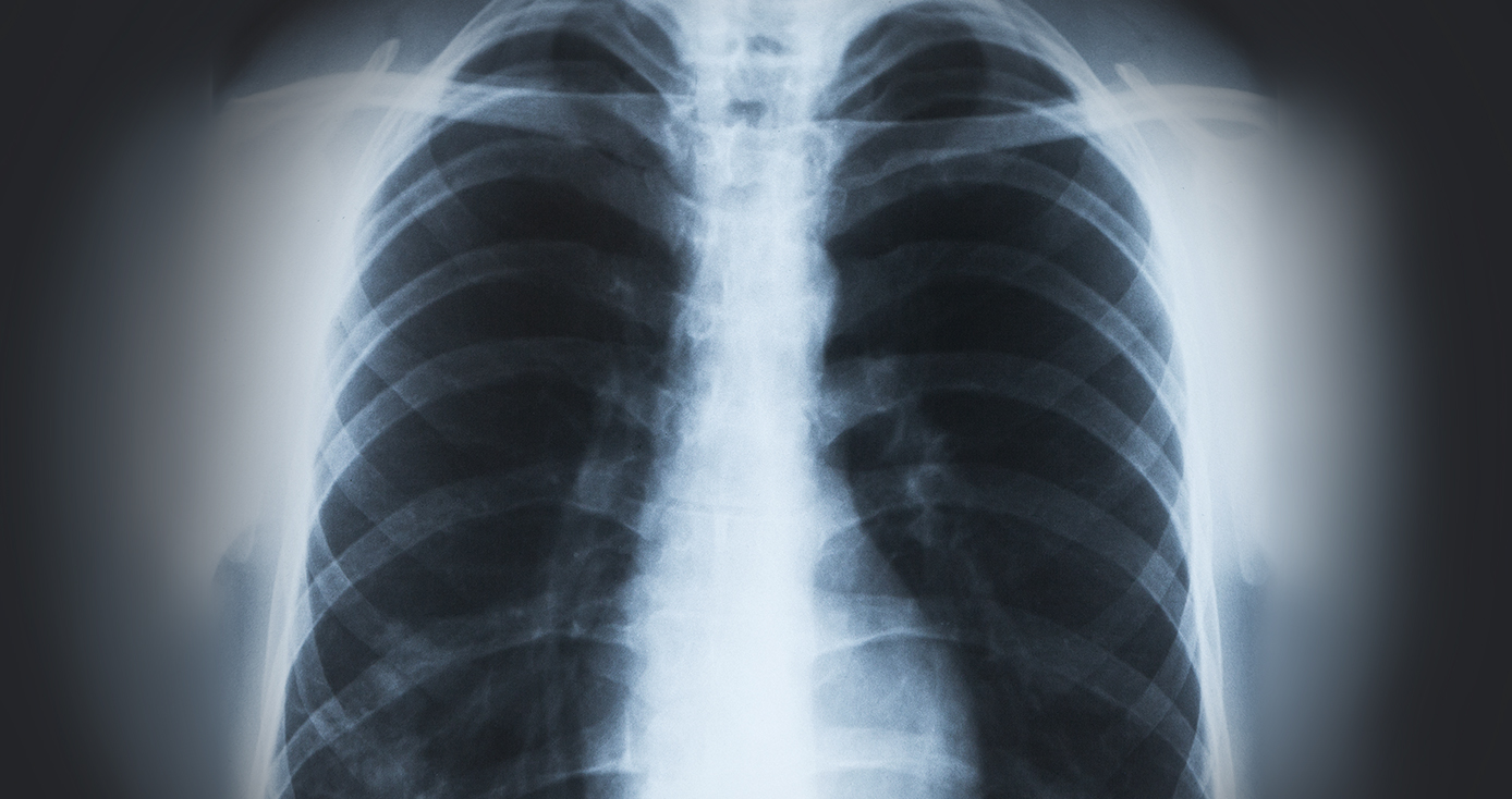 X-ray of pair of lungs