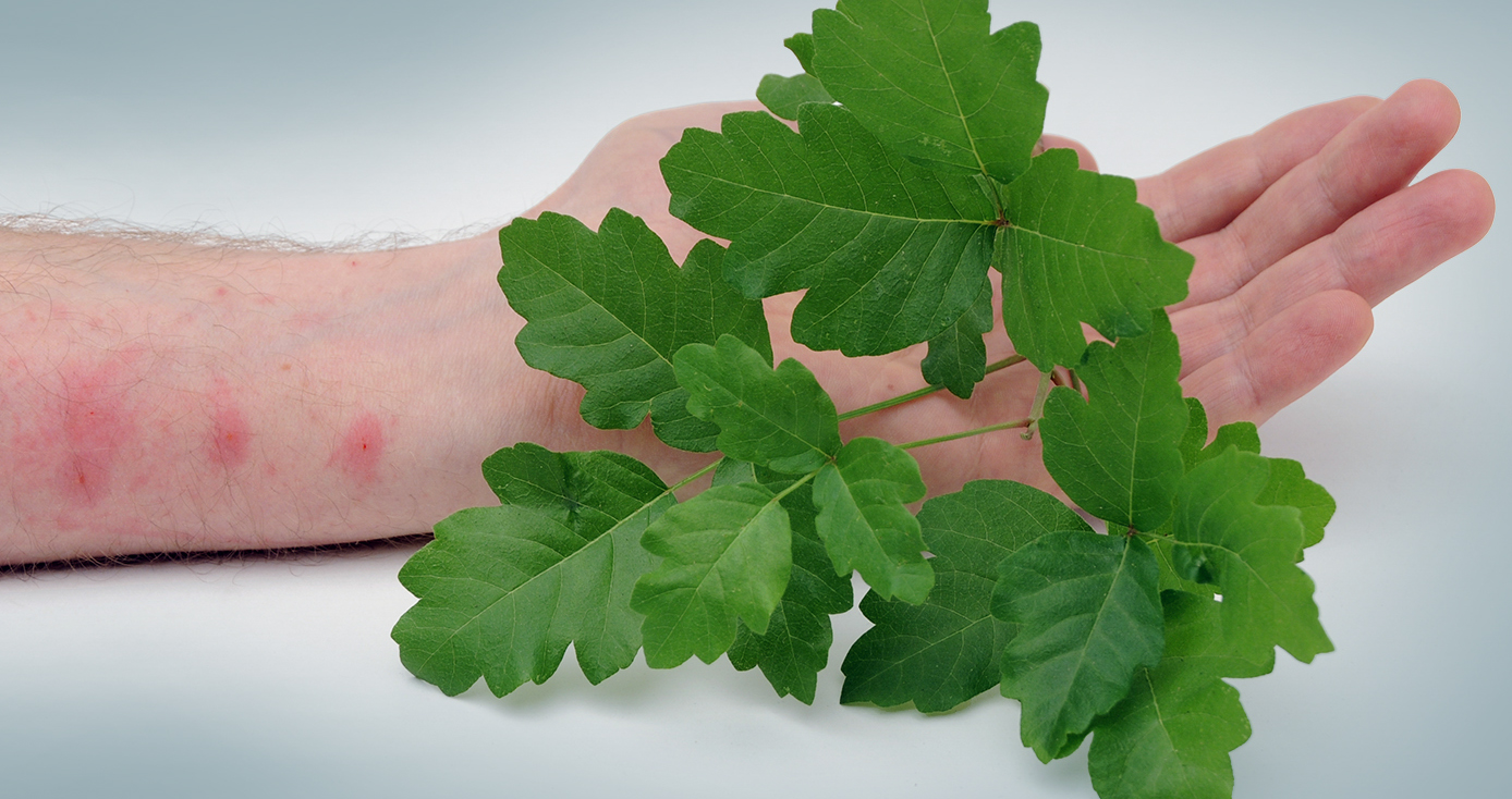 a pale arm with red spots from poison ivy, which is in the foreground