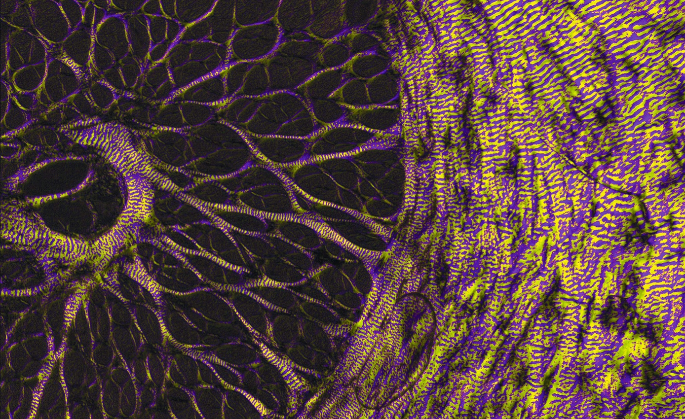 A depiction of nerves surrounding the eye.