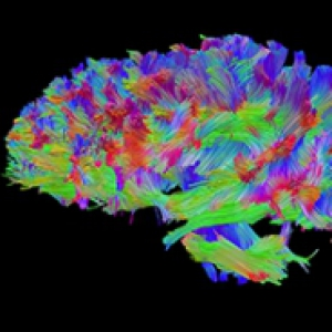 A multicolored rendering of a brain
