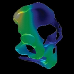 MRI scans show patterns of anatomical differences of pelvises. In the colored panels, blue and black represent an average shape, and brighter colors indicate areas of high variability.